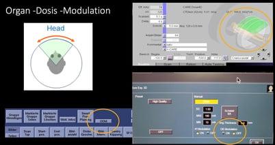 Abb.4: Dosismodulation deaktivieren bei Canon CT
