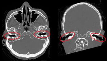 Abb.5: Coronares und axiales Schnittbild mit Markierung, der inneren Gehörgänge