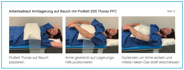 Lagerung Arme-auf-Bauch mit ProBelt Thorax PFC