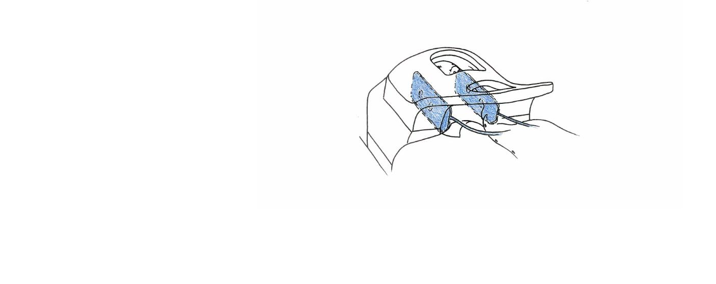 Fixierung des Kopfes mit MULTIPAD in Kopfspule