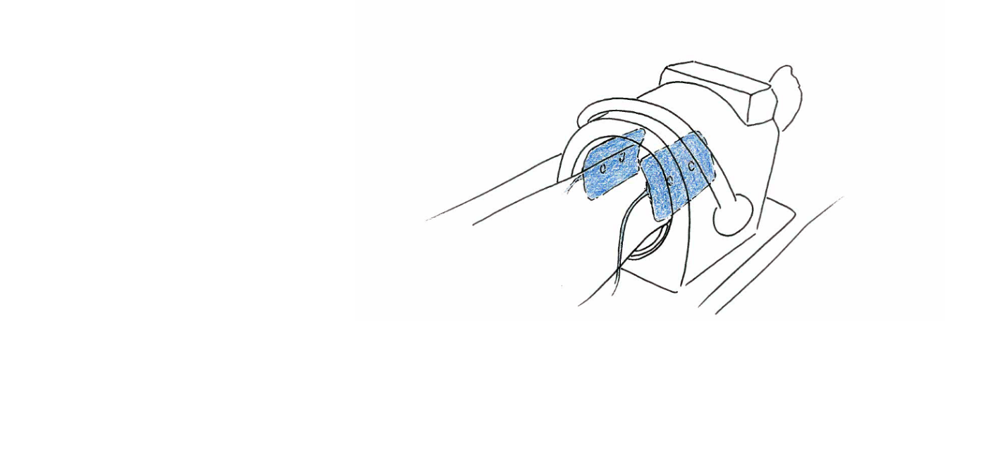 Fixierung des Knies mit MULTIPAD in Kniespule