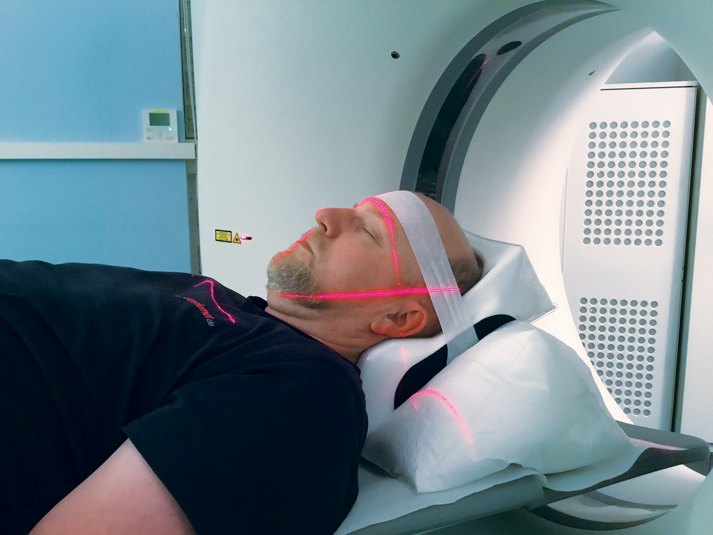 Head Fixation during CT Scan using PearlFit Head/Neck Vac