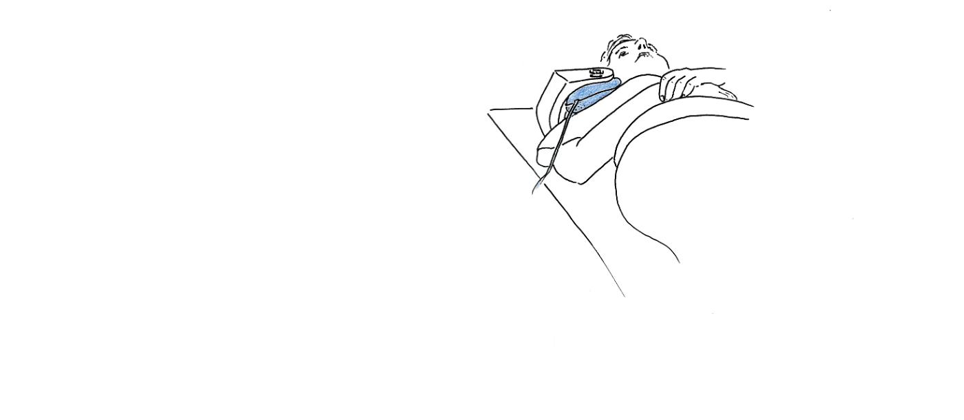 Fixierung der Schulter mit MULTIPAD in Schulterspule