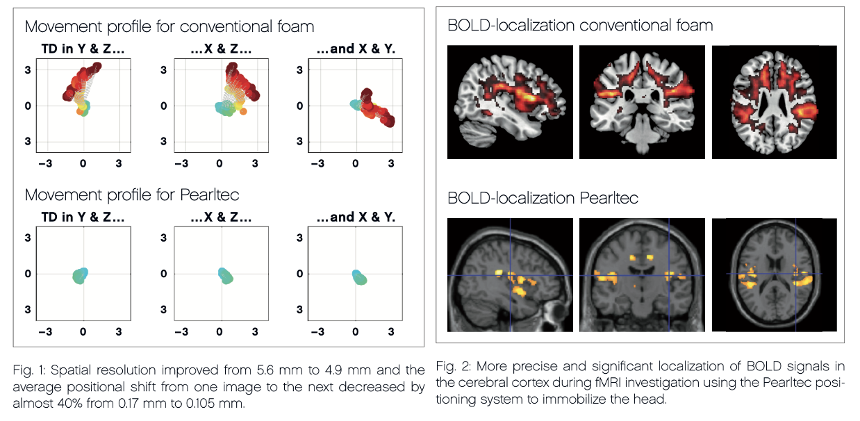 Comparison image quality using conventional foam vs. Crania positioning aid